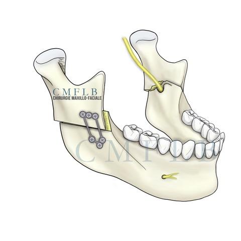 Osteotomie_Courte_BM_OS